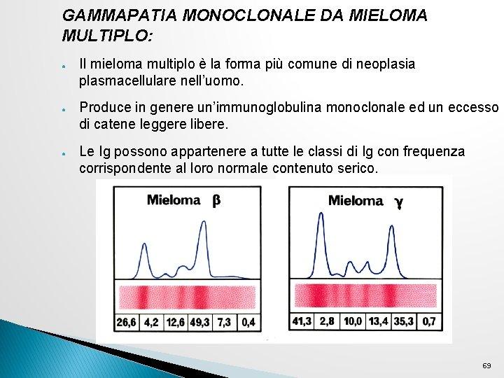 GAMMAPATIA MONOCLONALE DA MIELOMA MULTIPLO: ● ● ● Il mieloma multiplo è la forma