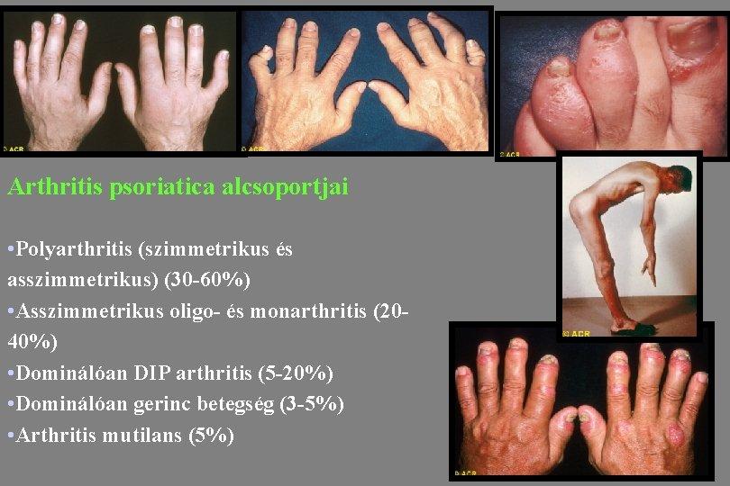 arthritis psoriatica betegség fájdalom a könyökízületek csontainál