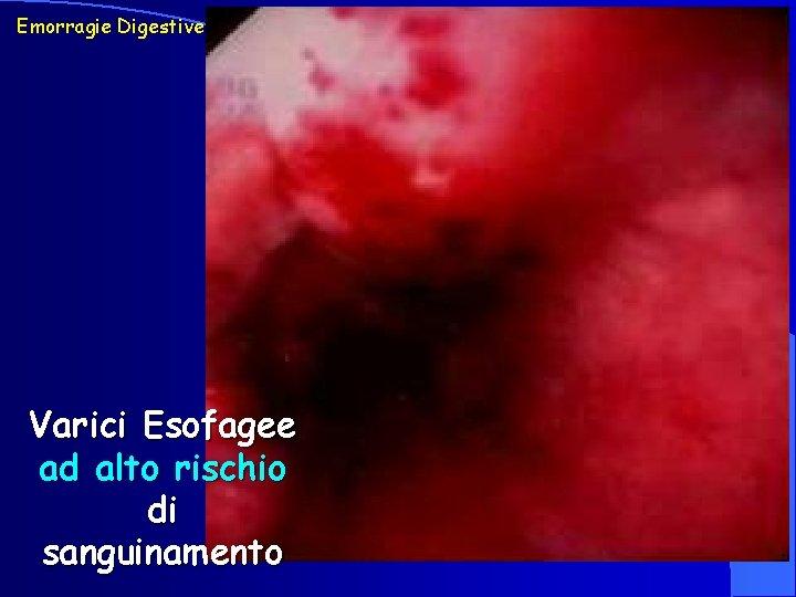 Emorragie Digestive Varici Esofagee ad alto rischio di sanguinamento
