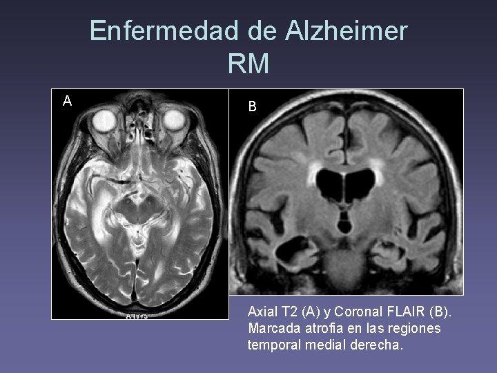 Enfermedad de Alzheimer RM A B Axial T 2 (A) y Coronal FLAIR (B).