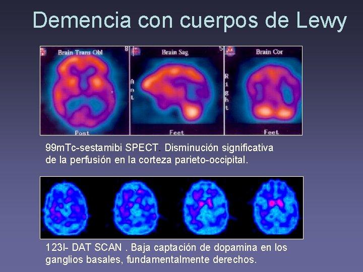 Demencia con cuerpos de Lewy 99 m. Tc-sestamibi SPECT. Disminución significativa de la perfusión