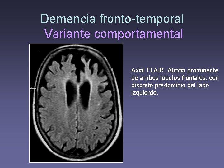 Demencia fronto-temporal Variante comportamental Axial FLAIR. Atrofia prominente de ambos lóbulos frontales, con discreto