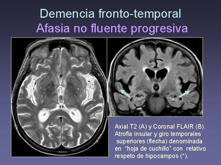 Demencia fronto-temporal Afasia no fluente progresiva • Axial T 2 (A) y Coronal FLAIR