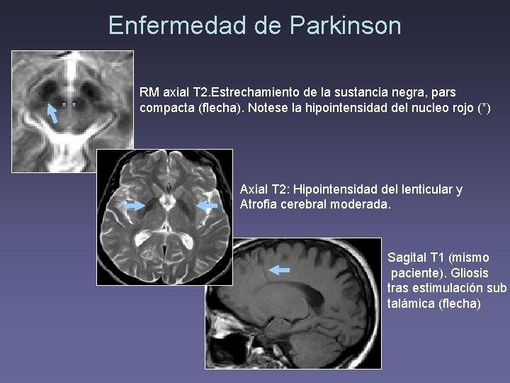 Enfermedad de Parkinson ** RM axial T 2. Estrechamiento de la sustancia negra, pars