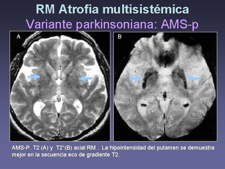 RM Atrofia multisistémica Variante parkinsoniana: AMS-p A B A AMS-P. T 2 (A) y