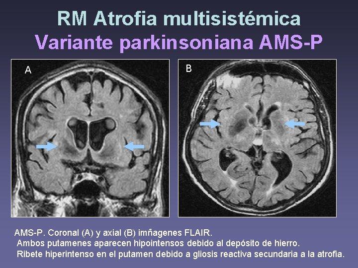 RM Atrofia multisistémica Variante parkinsoniana AMS-P A B AMS-P. Coronal (A) y axial (B)