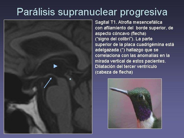 Parálisis supranuclear progresiva Sagital T 1. Atrofia mesencefálica con afilamiento del borde superior, de