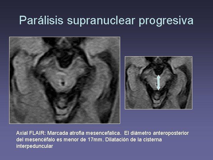 Parálisis supranuclear progresiva Axial FLAIR: Marcada atrofia mesencefalica. El diámetro anteroposterior del mesencéfalo es