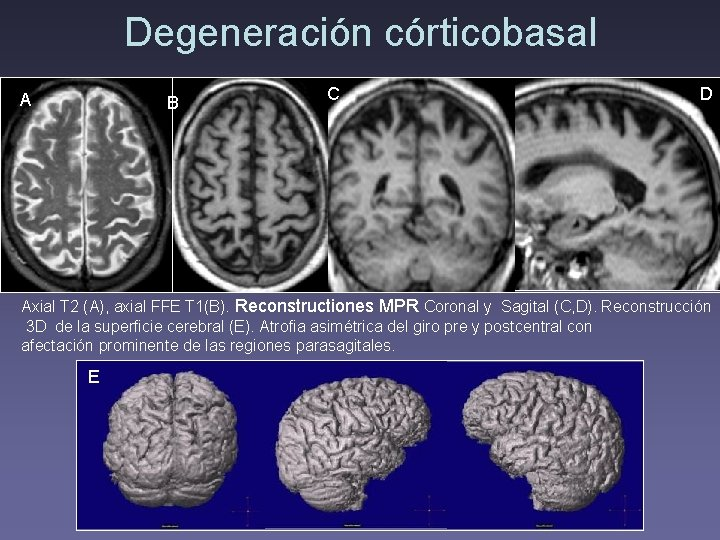 Degeneración córticobasal A B C D Axial T 2 (A), axial FFE T 1(B).