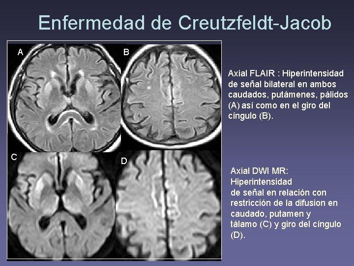 Enfermedad de Creutzfeldt-Jacob A B Axial FLAIR : Hiperintensidad de señal bilateral en ambos