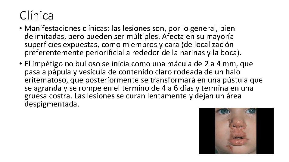 Clínica • Manifestaciones clínicas: las lesiones son, por lo general, bien delimitadas, pero pueden