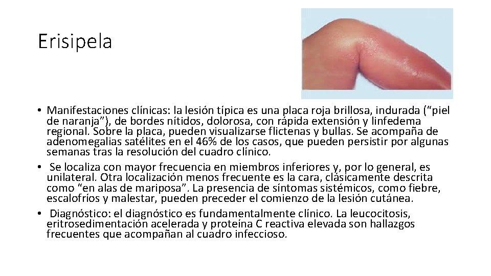 """Erisipela • Manifestaciones clínicas: la lesión típica es una placa roja brillosa, indurada (""""piel"""