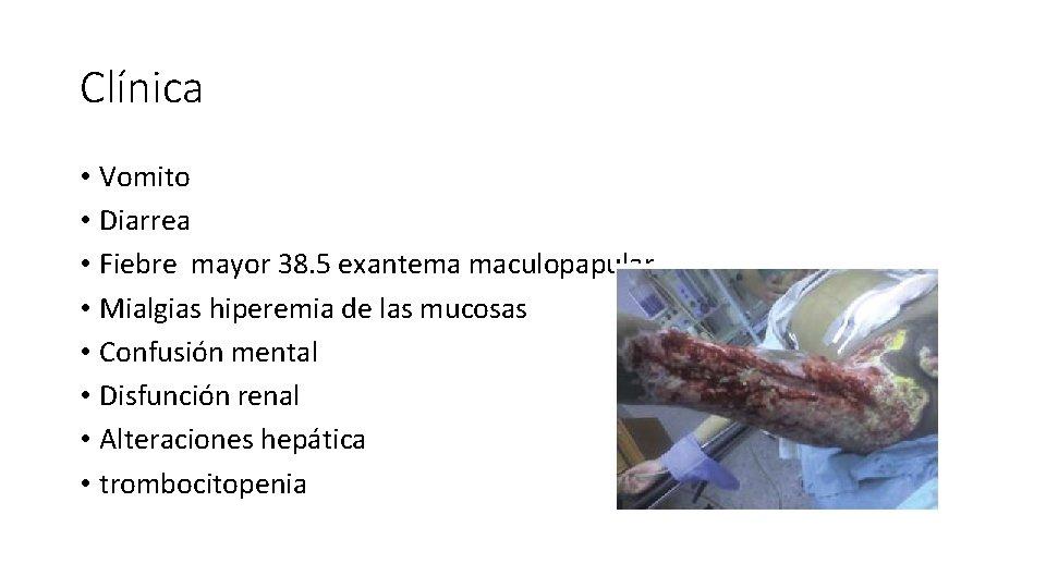 Clínica • Vomito • Diarrea • Fiebre mayor 38. 5 exantema maculopapular • Mialgias