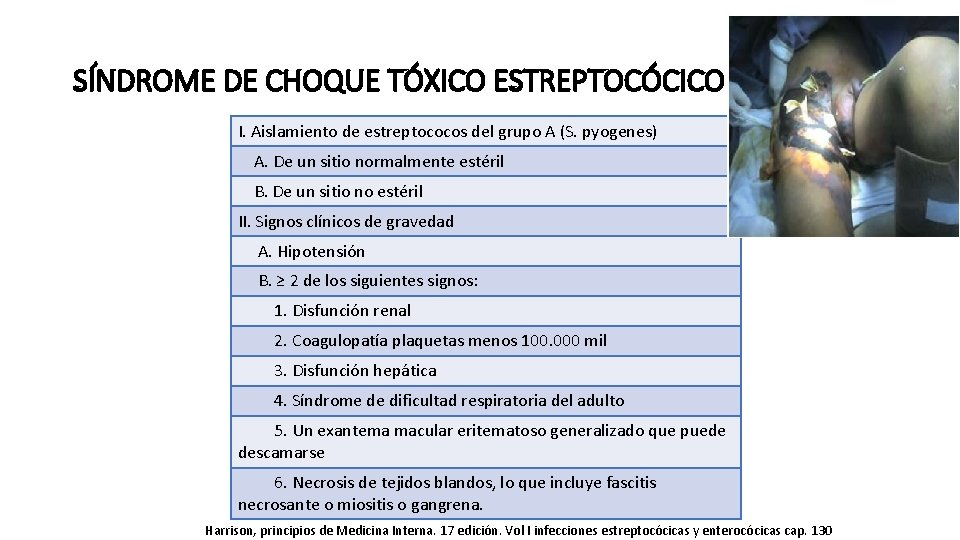 SÍNDROME DE CHOQUE TÓXICO ESTREPTOCÓCICO I. Aislamiento de estreptococos del grupo A (S. pyogenes)