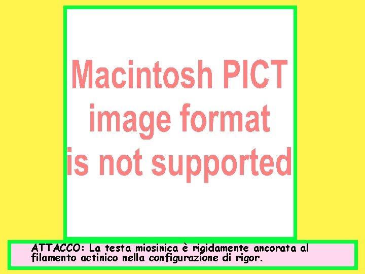 ATTACCO: La testa miosinica è rigidamente ancorata al filamento actinico nella configurazione di rigor.