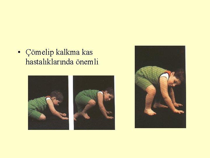 • Çömelip kalkma kas hastalıklarında önemli