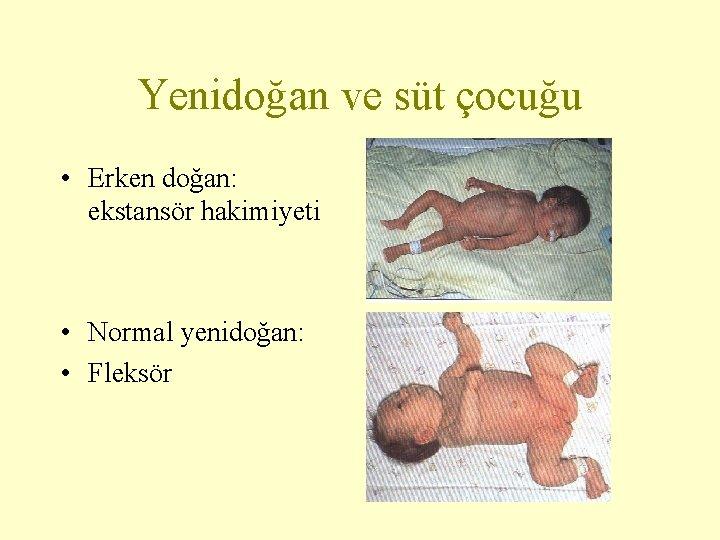 Yenidoğan ve süt çocuğu • Erken doğan: ekstansör hakimiyeti • Normal yenidoğan: • Fleksör