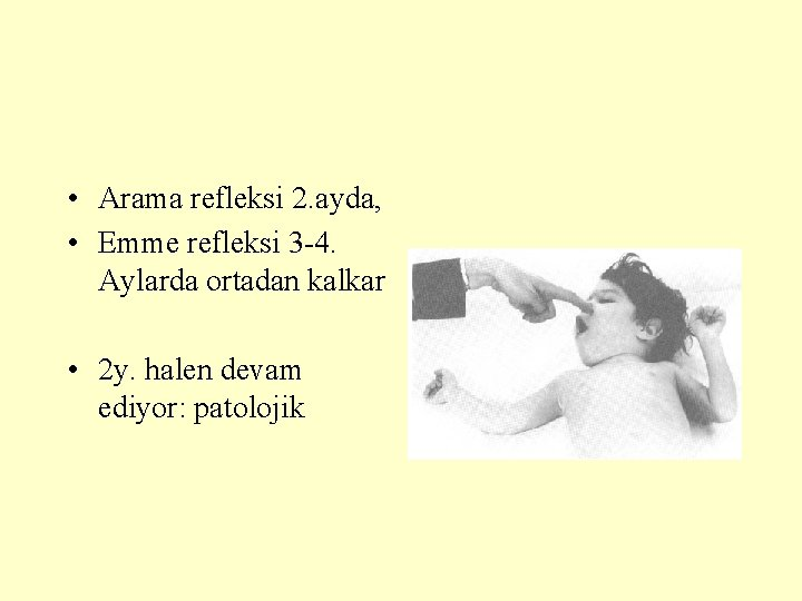 • Arama refleksi 2. ayda, • Emme refleksi 3 -4. Aylarda ortadan kalkar