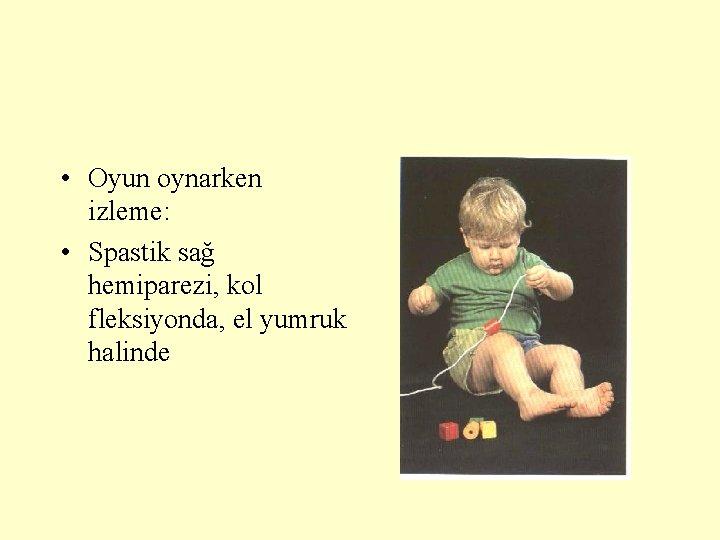 • Oyun oynarken izleme: • Spastik sağ hemiparezi, kol fleksiyonda, el yumruk halinde