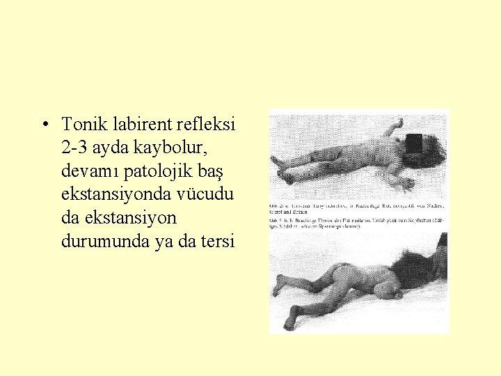 • Tonik labirent refleksi 2 -3 ayda kaybolur, devamı patolojik baş ekstansiyonda vücudu