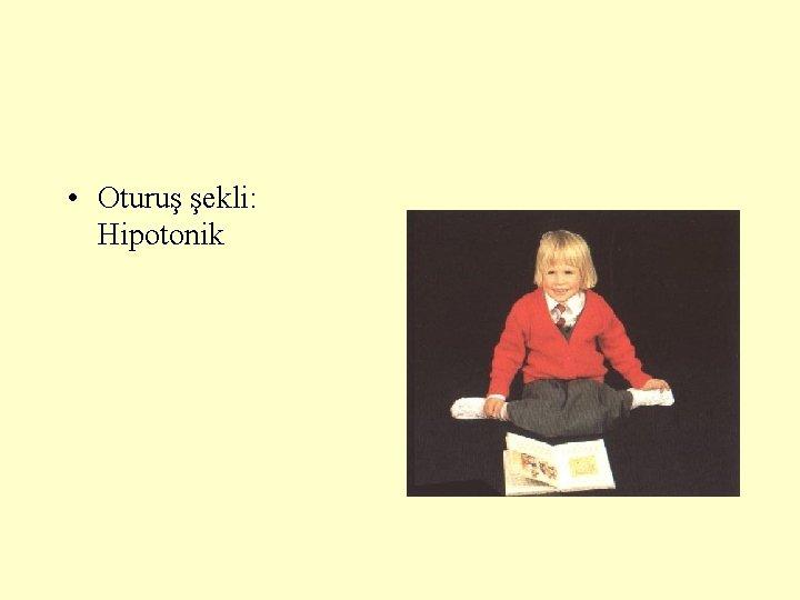 • Oturuş şekli: Hipotonik