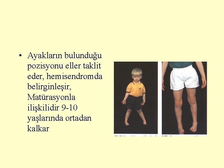 • Ayakların bulunduğu pozisyonu eller taklit eder, hemisendromda belirginleşir, Matürasyonla ilişkilidir 9 -10