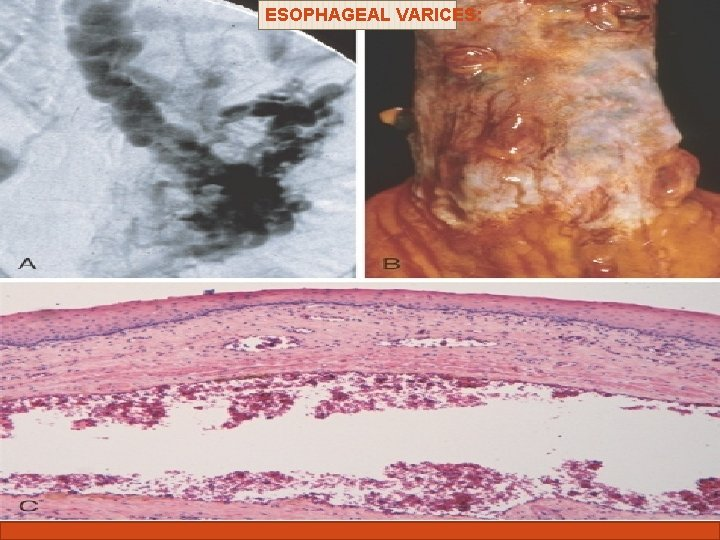 ESOPHAGEAL VARICES: Complications of liver cirrhosis