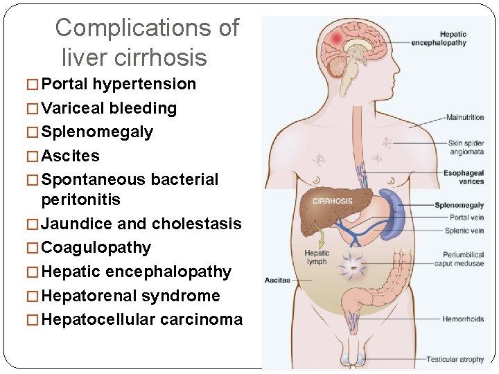 . Complications of liver cirrhosis � Portal hypertension � Variceal bleeding � Splenomegaly �
