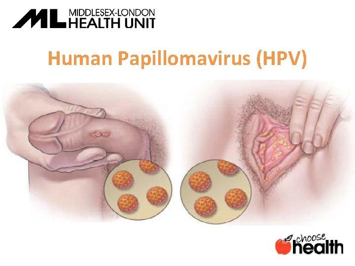 Human papillomavirus infection no warts, Is human papilloma virus always sexually transmitted