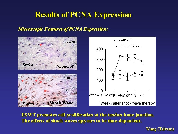Results of PCNA Expression Microscopic Features of PCNA Expression: Bone (Bone) ---● --- Control