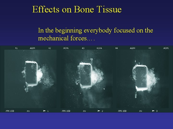 Effects on Bone Tissue In the beginning everybody focused on the mechanical forces….