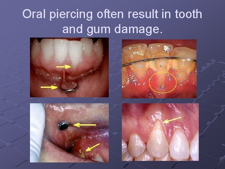 Oral piercing often result in tooth and gum damage.