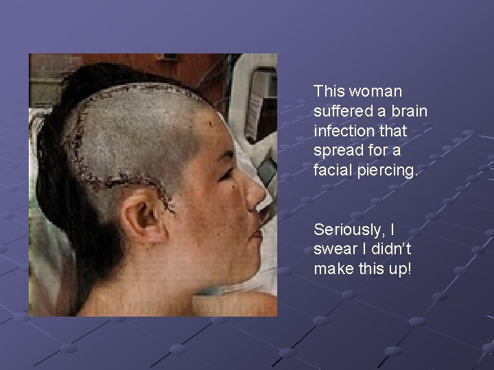 This woman suffered a brain infection that spread for a facial piercing. Seriously, I