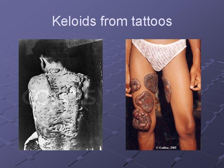 Keloids from tattoos