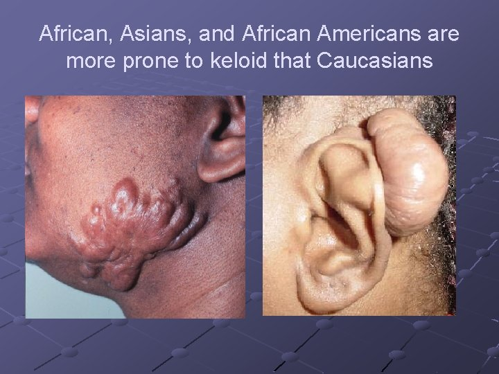 African, Asians, and African Americans are more prone to keloid that Caucasians