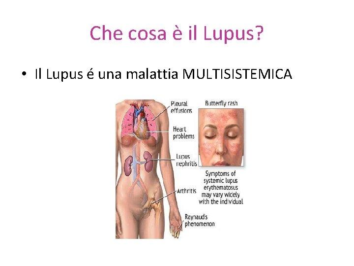 Che cosa è il Lupus? • Il Lupus é una malattia MULTISISTEMICA