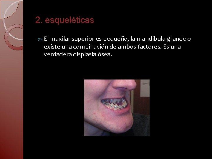 2. esqueléticas El maxilar superior es pequeño, la mandíbula grande o existe una combinación
