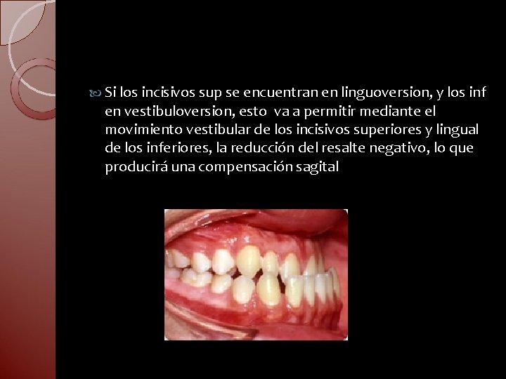 Si los incisivos sup se encuentran en linguoversion, y los inf en vestibuloversion,