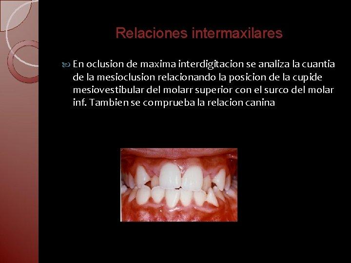 Relaciones intermaxilares En oclusion de maxima interdigitacion se analiza la cuantia de la mesioclusion