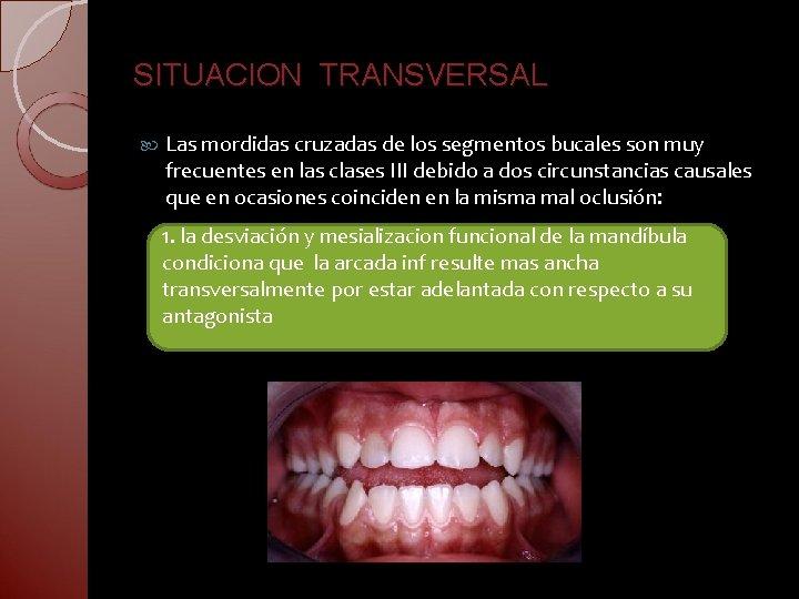 SITUACION TRANSVERSAL Las mordidas cruzadas de los segmentos bucales son muy frecuentes en las
