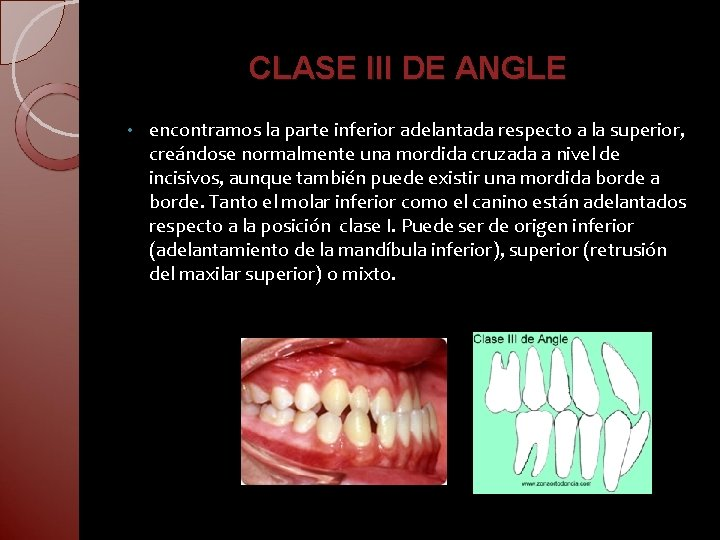 CLASE III DE ANGLE • encontramos la parte inferior adelantada respecto a la superior,