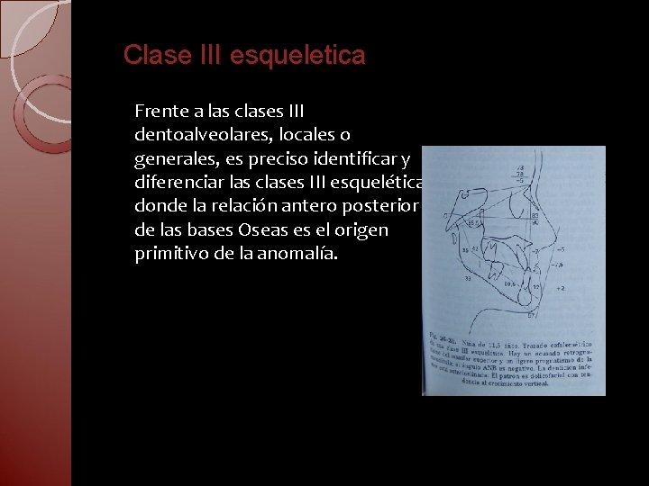 Clase III esqueletica Frente a las clases III dentoalveolares, locales o generales, es preciso