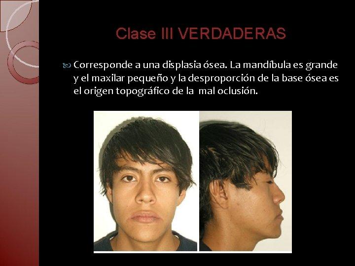 Clase III VERDADERAS Corresponde a una displasia ósea. La mandíbula es grande y el