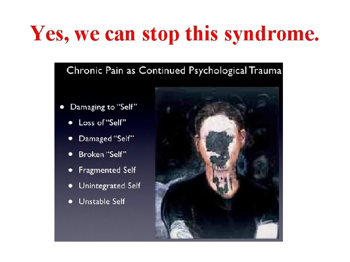 Yes, we can stop this syndrome.