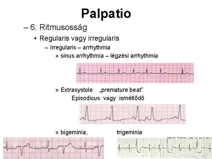 Palpatio – 6. Ritmusosság • Regularis vagy irregularis – Irregularis – arrhythmia » sinus