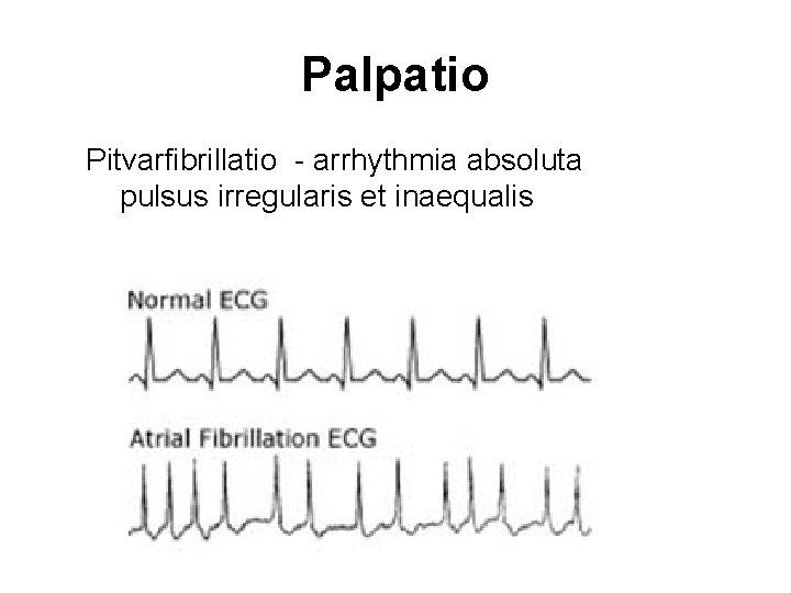 Palpatio Pitvarfibrillatio - arrhythmia absoluta pulsus irregularis et inaequalis