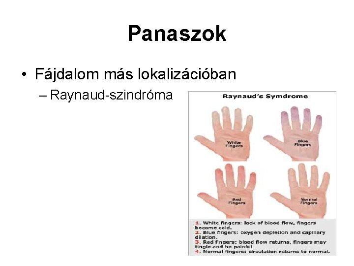 Panaszok • Fájdalom más lokalizációban – Raynaud-szindróma
