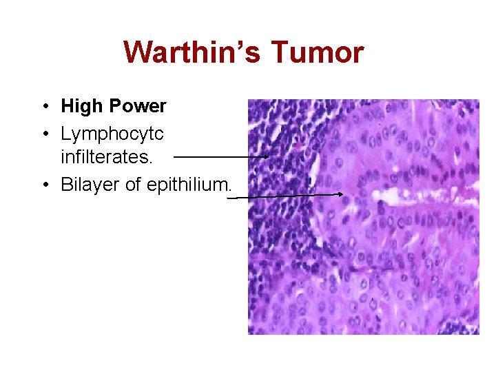 warthin's tumor histology fertőző és nem fertőző prosztatitis