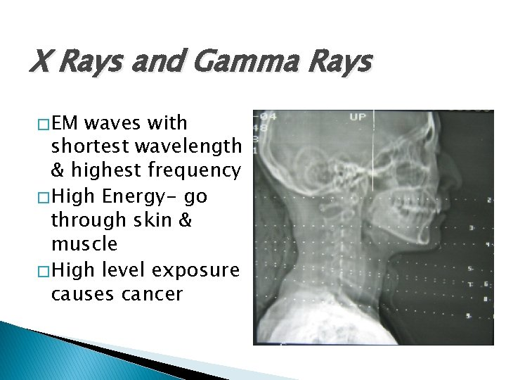 X Rays and Gamma Rays � EM waves with shortest wavelength & highest frequency
