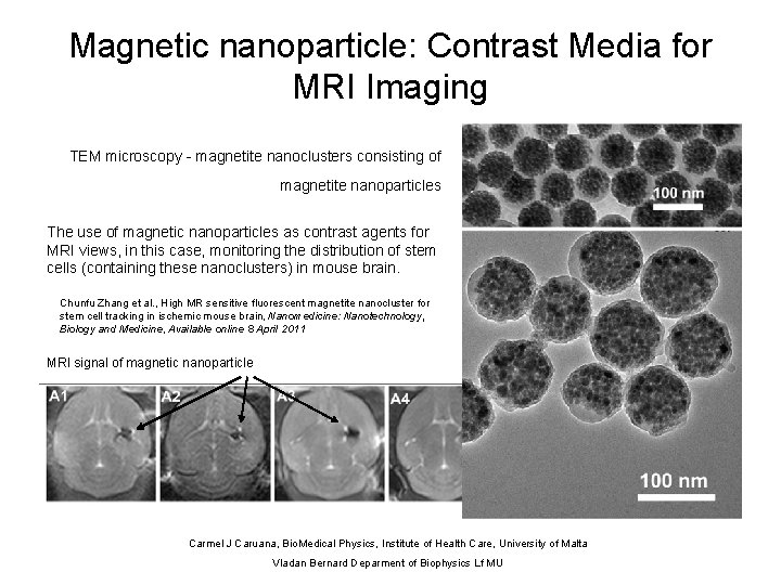 Magnetic nanoparticle: Contrast Media for MRI Imaging TEM microscopy - magnetite nanoclusters consisting of